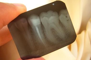 歯周病による膿が臭う?