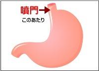 胃、噴門の画像