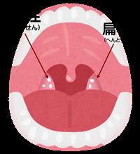 膿栓の画像